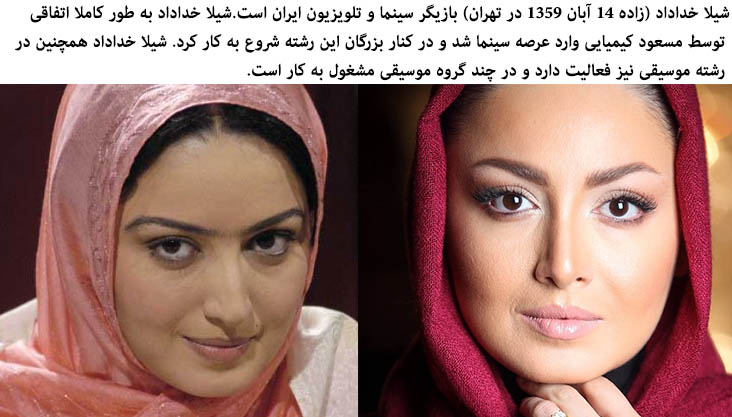 Iranians Actresses Before And After Plastic Surgery Page