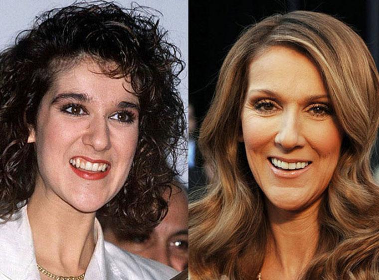 Celebrity Smile Makeovers - Frangella Dental