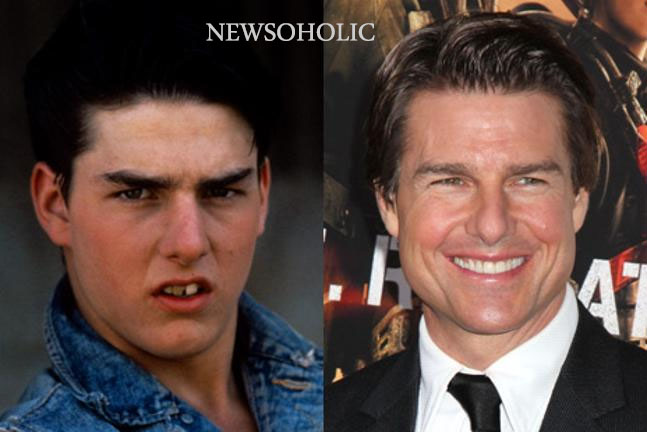 Celebrity Teeth Before And After Smile Makeovers Newsoholic